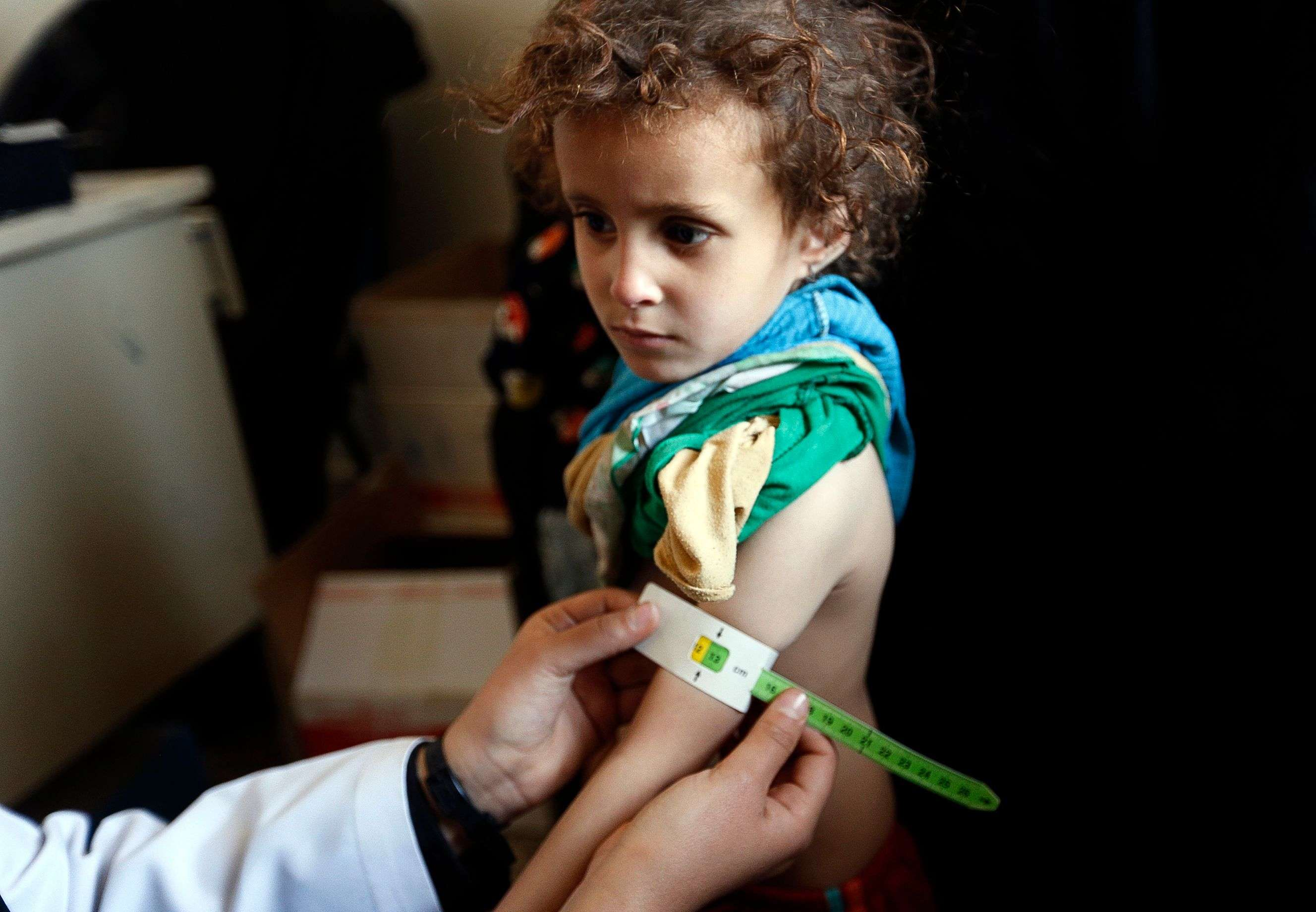 A Yemeni infant suffering from malnutrition is weighed and measured at a medical centre in Bani Hawat, on the outskirts of Sanaa. (AFP)